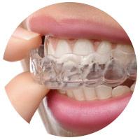 orlando dental services - invisalign
